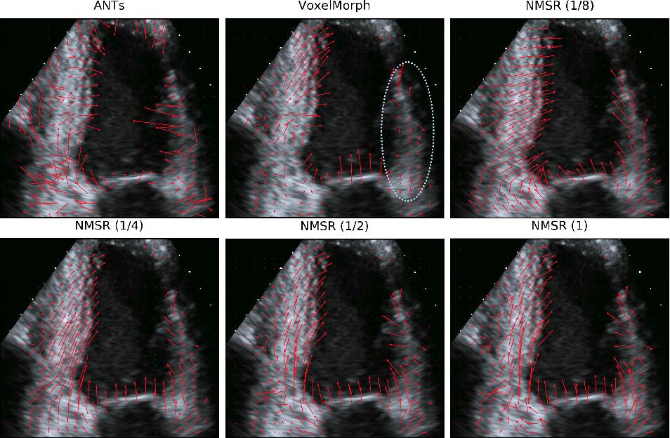 Figure 3 for Neural Multi-Scale Self-Supervised Registration for Echocardiogram Dense Tracking