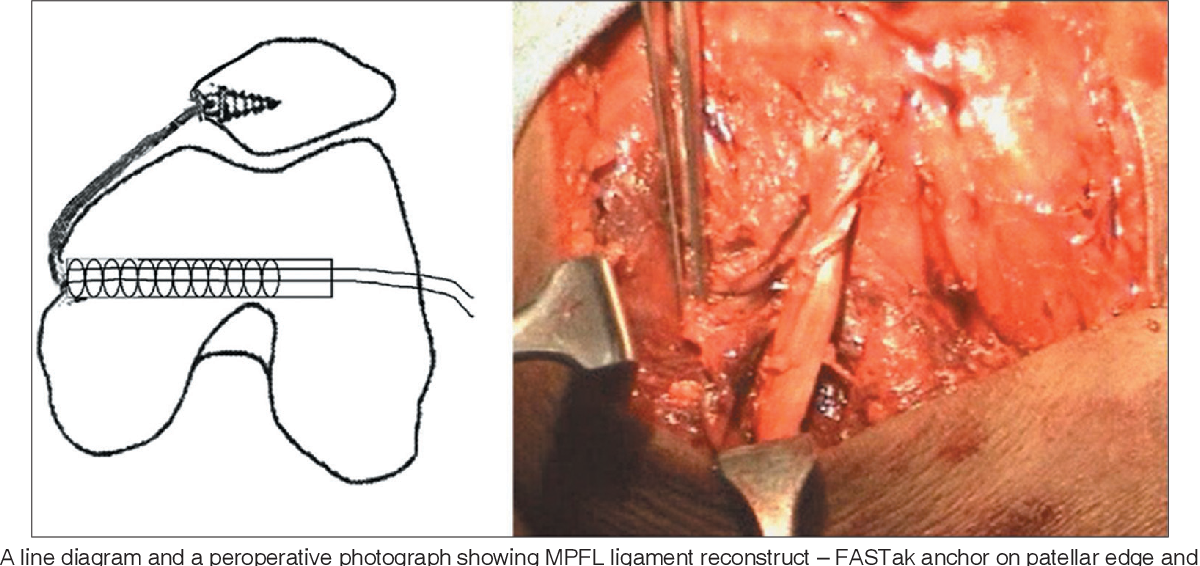 Reconstruction Of Medial Patellofemoral Ligament For Chronic