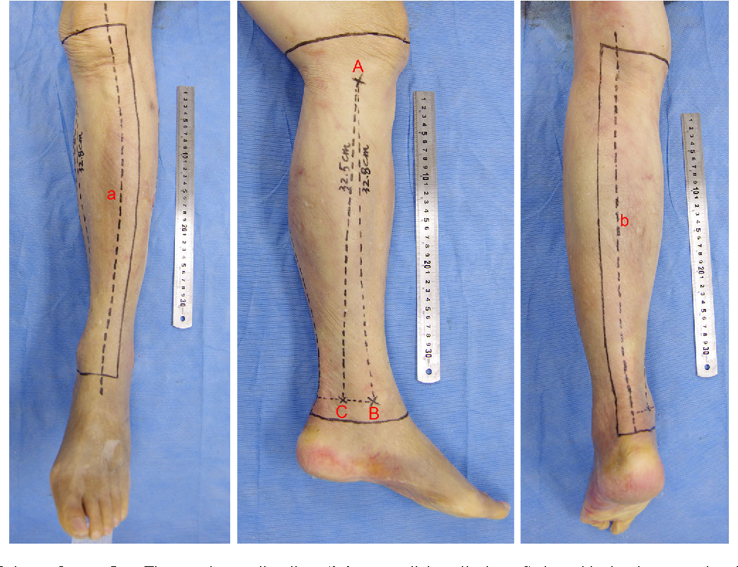 Delineation The Anatomy Of Posterior Tibial Artery Perforator Flaps