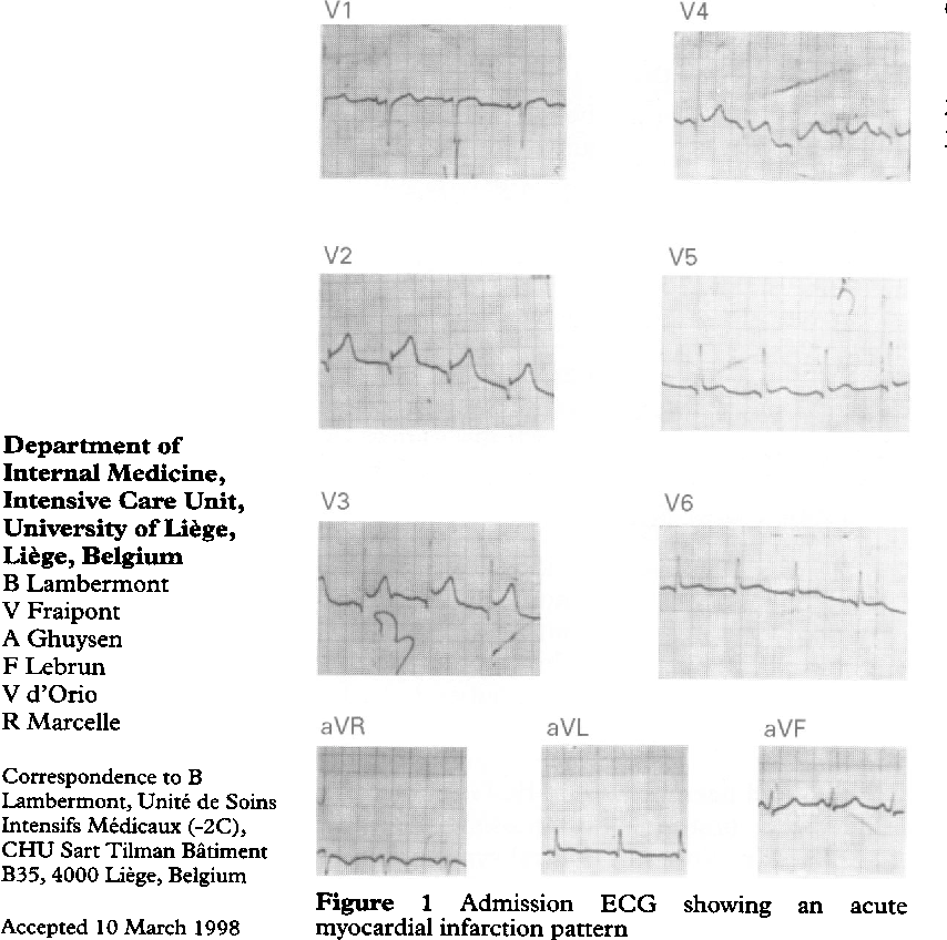 PDF] An unconscious patient with an electrocardiogram