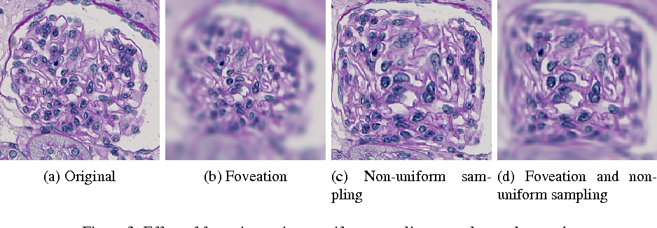 Figure 4 for CNN Cascades for Segmenting Whole Slide Images of the Kidney