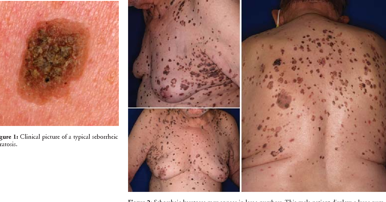 figure 1 from seborrheic keratosis semantic scholar