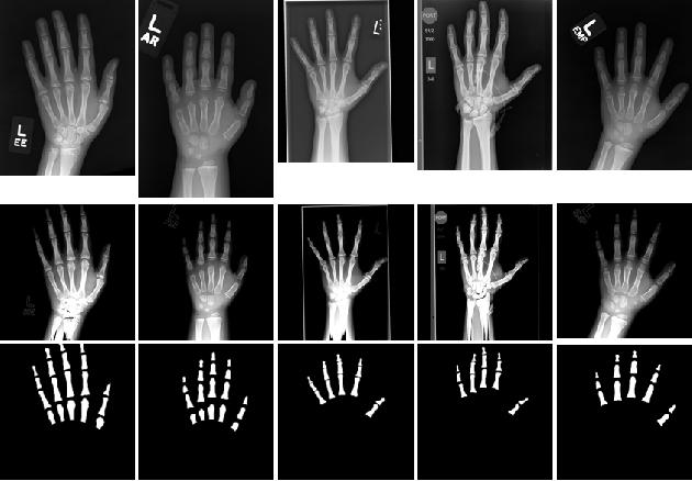 Figure 2 for Deeply Supervised Active Learning for Finger Bones Segmentation