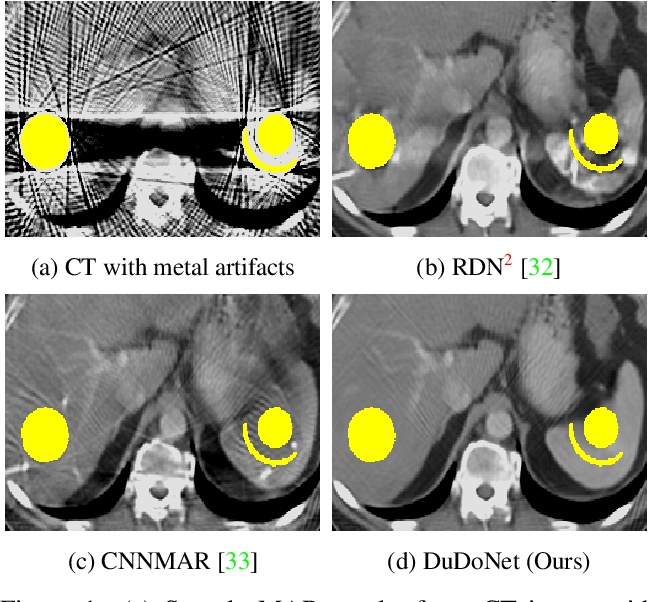 Figure 1 for DuDoNet: Dual Domain Network for CT Metal Artifact Reduction