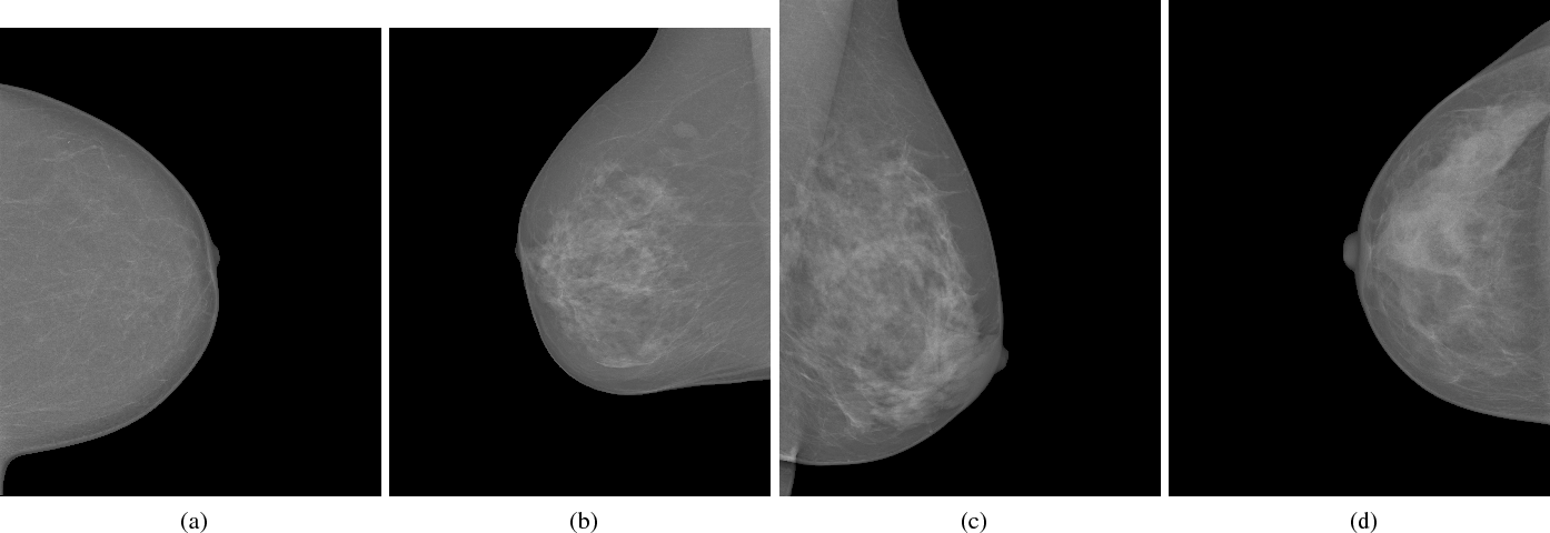Figure 1 for Classifying Mammographic Breast Density by Residual Learning
