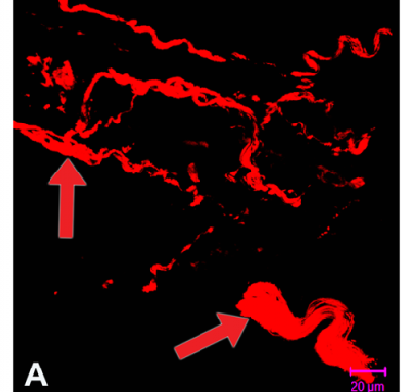 Figure 6 from Mechanisms of nerve injury in leprosy  - Semantic Scholar