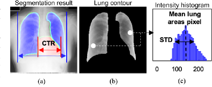 Figure 3 for Deep Learning COVID-19 Features on CXR using Limited Training Data Sets