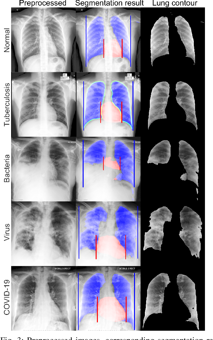 Figure 4 for Deep Learning COVID-19 Features on CXR using Limited Training Data Sets