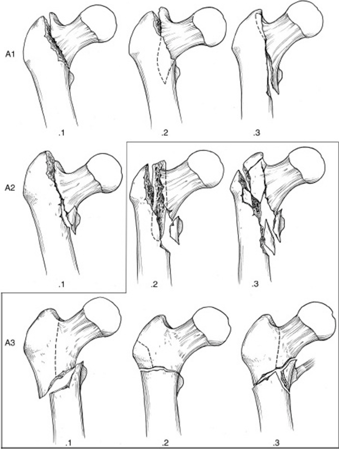 Figure 5 from Arthroplasty for Pertrochanteric Hip Fractures ...