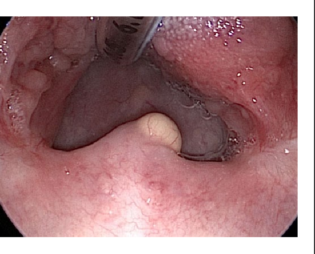 Intraoperative view of the uvula mass after placement of Crowe-Davis mouth