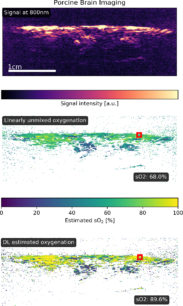 Figure 4 for Estimation of blood oxygenation with learned spectral decoloring for quantitative photoacoustic imaging (LSD-qPAI)