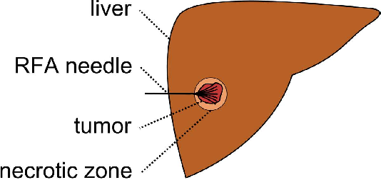 Figure 1 for Interactive Volumetry Of Liver Ablation Zones