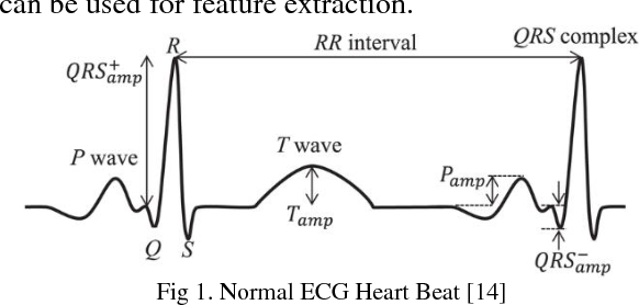 Figure 1 for Implementation of Neural Network and feature extraction to classify ECG signals