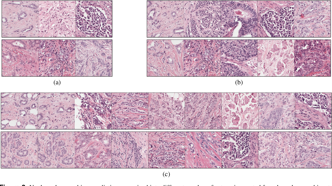 Figure 3 for Automated Scoring of Nuclear Pleomorphism Spectrum with Pathologist-level Performance in Breast Cancer
