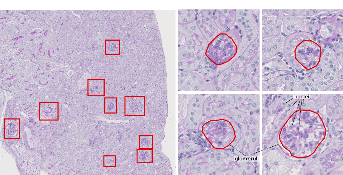 Figure 1 for Unsupervisedly Training GANs for Segmenting Digital Pathology with Automatically Generated Annotations