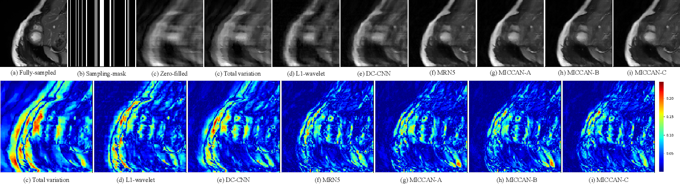 Figure 3 for MRI Reconstruction via Cascaded Channel-wise Attention Network