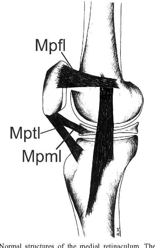 Ultrasound of the knee with emphasis on the detailed anatomy of ...