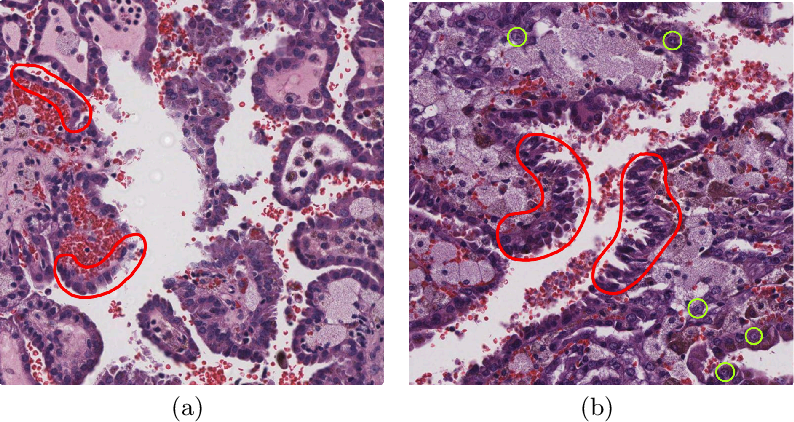 Figure 1 for Instance-based Vision Transformer for Subtyping of Papillary Renal Cell Carcinoma in Histopathological Image