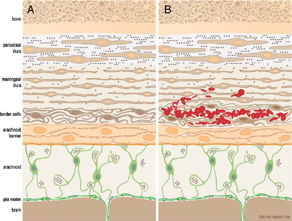 Anatomy and development of the meninges: implications for subdural ...