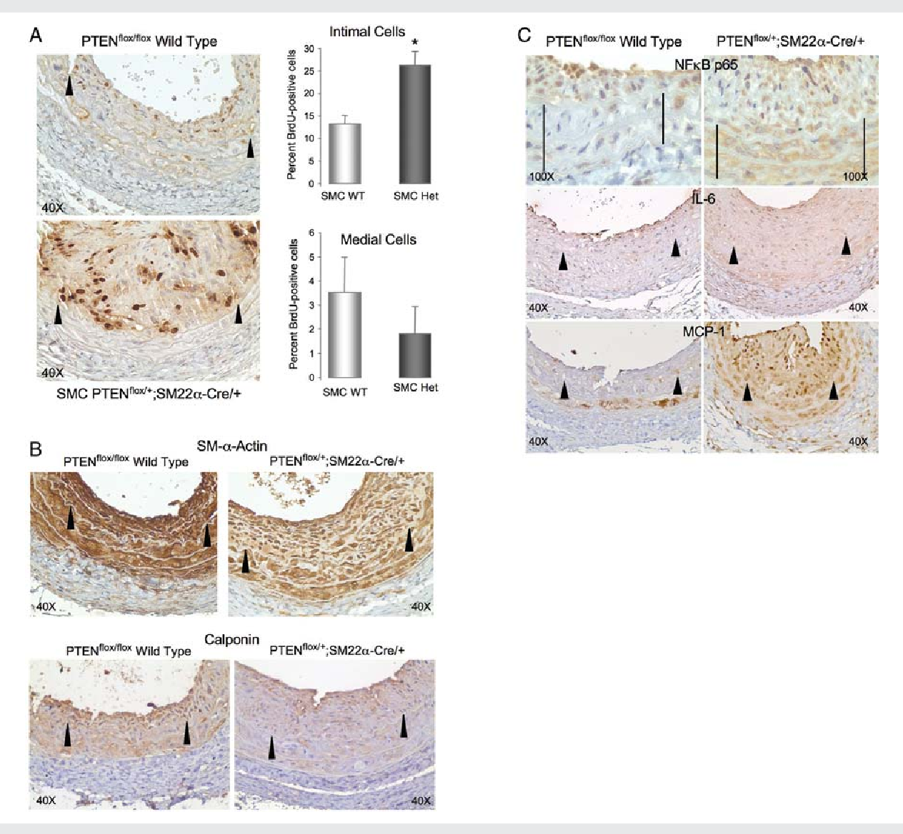 Figure 6 SMC-specific PTEN-deficient mutant mice exhibit increased intimal cell proliferation, reduced SM marker expression, and overexpression of NF-kB p65 and cytokines. (A) BrdU immunohistochemistry on injured left carotid arteries from wild-type (PTENfl/fl;þ/þ) and SMC-specific heterozygote (PTENfl/þ;SM22a-Creþ/2) mice (brown nuclei). Percent replicating cells was determined independently for the arterial media and intima and data presented in the graphs as means+ SE; *different from wild-type; P , 0.05. (B and C ) Immunohistochemistry for SM-a-actin (B, upper), calponin (B, lower), NF-kB p65 (C, upper), IL-6 (C, middle), or MCP-1 (C, lower) on injured left carotid arteries from wild-type (PTENfl/fl;þ/þ) and SMC-specific heterozygote (PTENfl/þ;SM22a-Creþ/2) mice (brown reaction colour). Arrowheads, internal elastic lamina; lines in C, the arterial media; n ¼ 4.