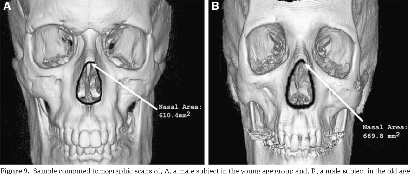 Figure 9 from Update on facial aging. - Semantic Scholar