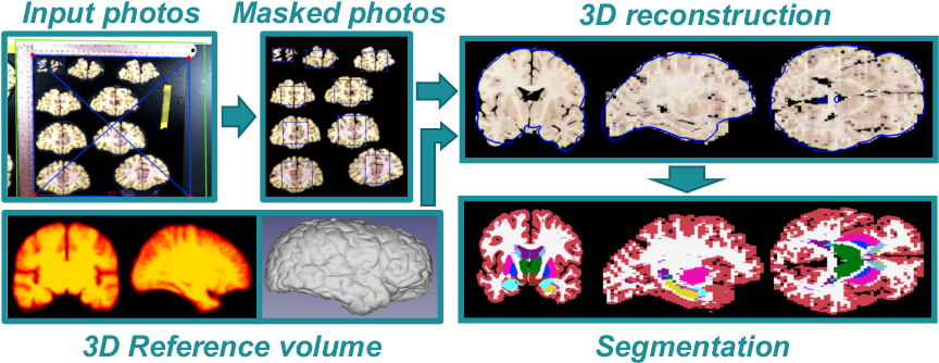 Figure 1 for 3D Reconstruction and Segmentation of Dissection Photographs for MRI-free Neuropathology
