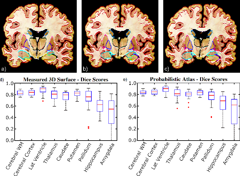 Figure 4 for 3D Reconstruction and Segmentation of Dissection Photographs for MRI-free Neuropathology