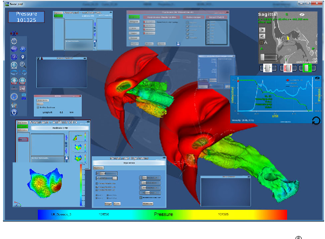 Figure 4 from New CFD tools to evaluate nasal airflow - Semantic Scholar