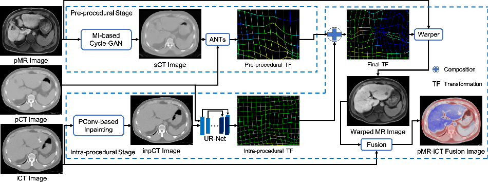 Figure 1 for Synthesis and Inpainting-Based MR-CT Registration for Image-Guided Thermal Ablation of Liver Tumors