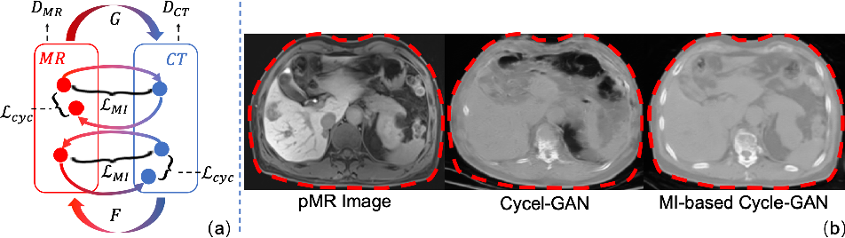 Figure 4 for Synthesis and Inpainting-Based MR-CT Registration for Image-Guided Thermal Ablation of Liver Tumors