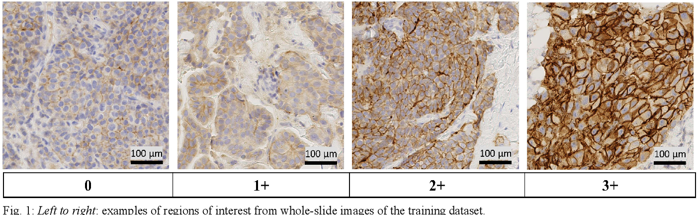 Figure 1 for Learning Where to See: A Novel Attention Model for Automated Immunohistochemical Scoring