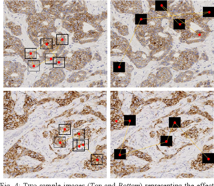 Figure 4 for Learning Where to See: A Novel Attention Model for Automated Immunohistochemical Scoring