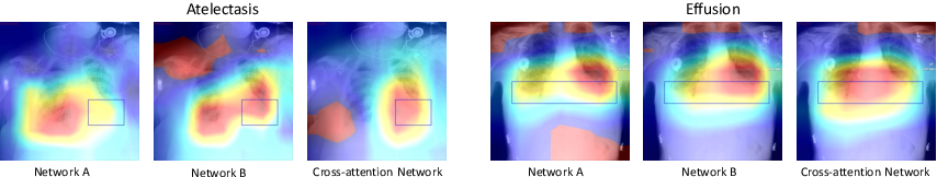 Figure 4 for Multi-label Thoracic Disease Image Classification with Cross-Attention Networks