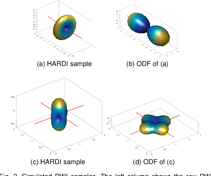 Figure 2 for Information-Theoretic Registration with Explicit Reorientation of Diffusion-Weighted Images