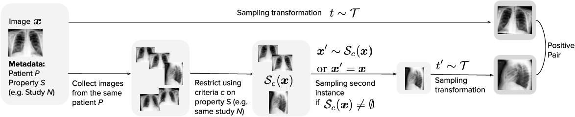Figure 1 for MedAug: Contrastive learning leveraging patient metadata improves representations for chest X-ray interpretation