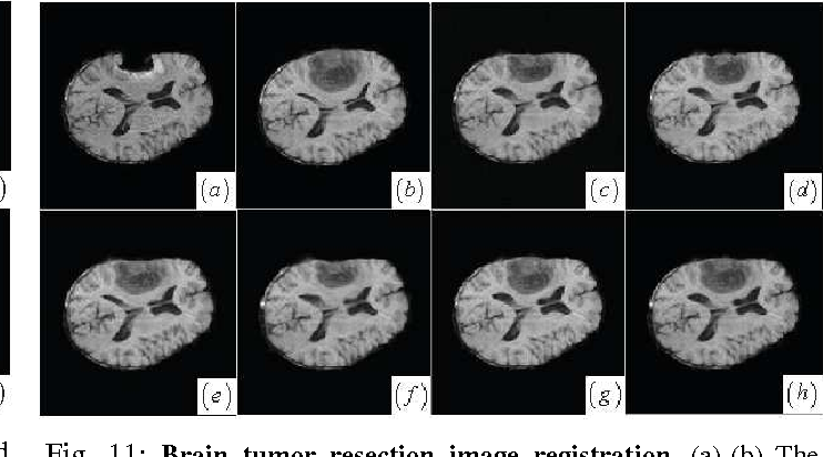 Figure 3 for Local Structure Matching Driven by Joint-Saliency-Structure Adaptive Kernel Regression