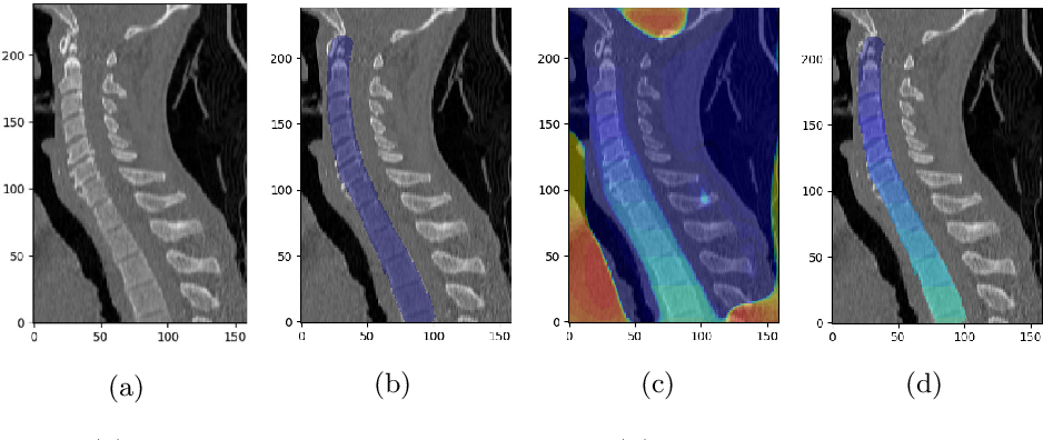 Figure 1 for Vertebrae Detection and Localization in CT with Two-Stage CNNs and Dense Annotations