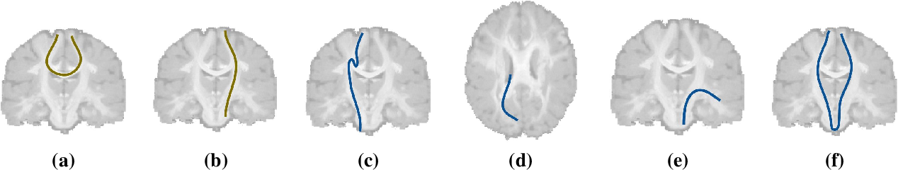 Figure 1 for Tractography filtering using autoencoders