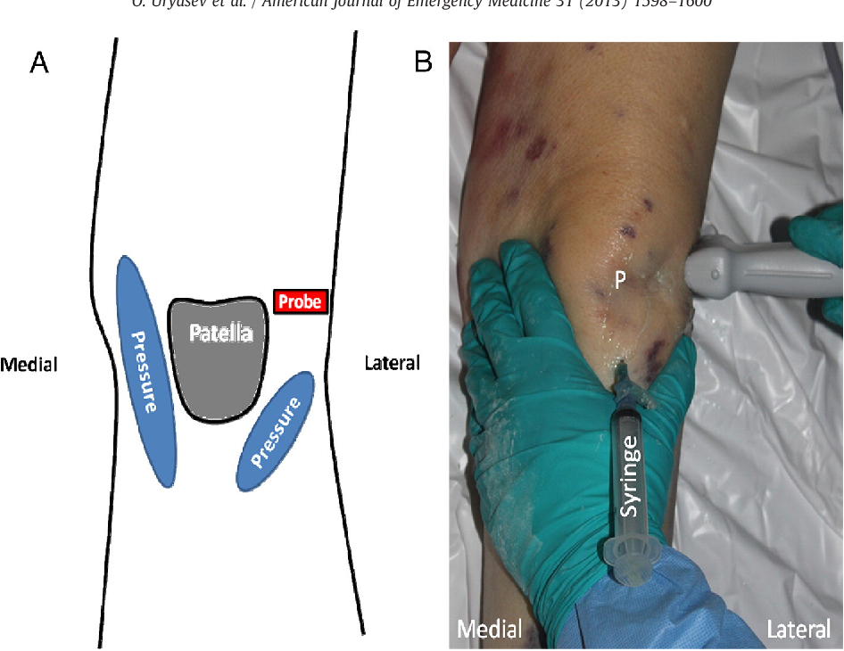 Novel joint cupping clinical maneuver for ultrasonographic detection figure 1 ccuart Choice Image