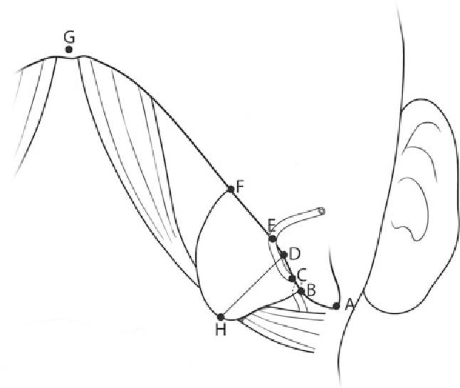 Anatomical Localization Of Submandibular Gland For Botulinum Toxin