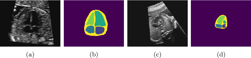 Figure 1 for Detecting Hypo-plastic Left Heart Syndrome in Fetal Ultrasound via Disease-specific Atlas Maps