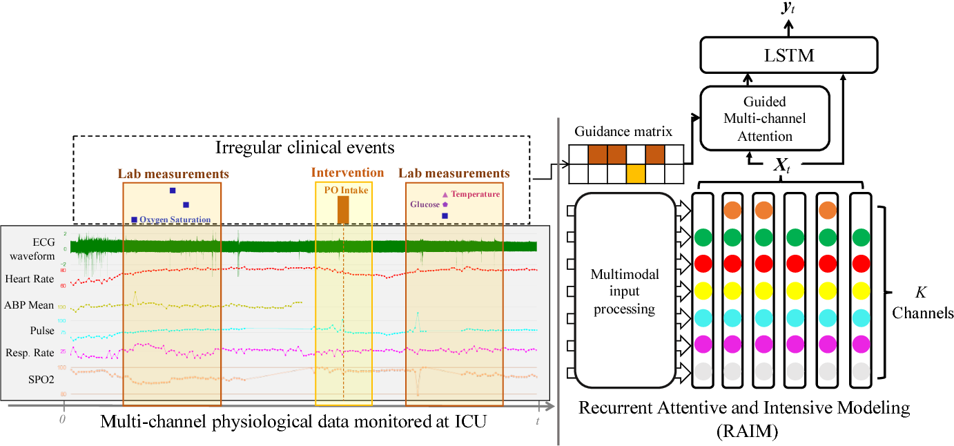 Figure 1 for RAIM: Recurrent Attentive and Intensive Model of Multimodal Patient Monitoring Data