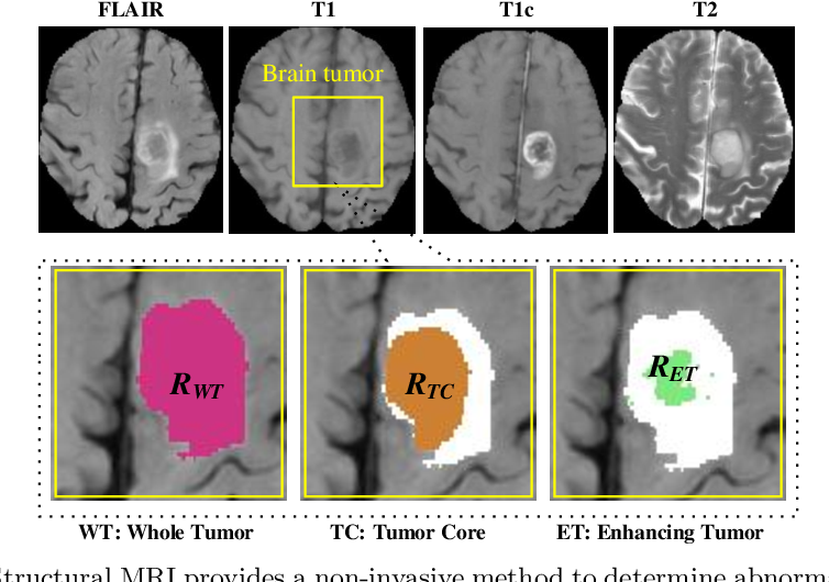 Figure 1 for Convolutional 3D to 2D Patch Conversion for Pixel-wise Glioma Segmentation in MRI Scans