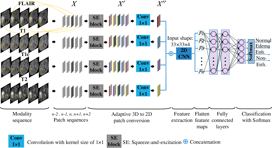 Figure 3 for Convolutional 3D to 2D Patch Conversion for Pixel-wise Glioma Segmentation in MRI Scans