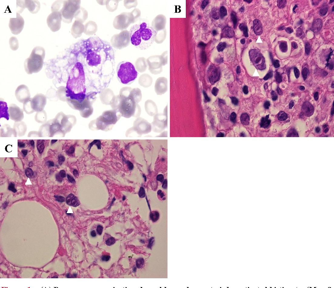 Figure 1 from HIV-negative Primary Bone Marrow Hodgkin