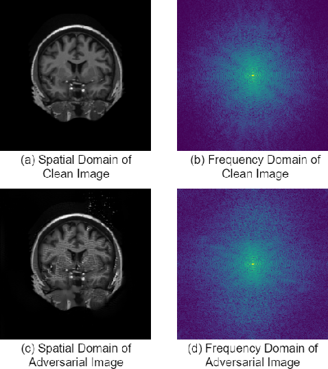 Figure 3 for Robustification of Segmentation Models Against Adversarial Perturbations In Medical Imaging