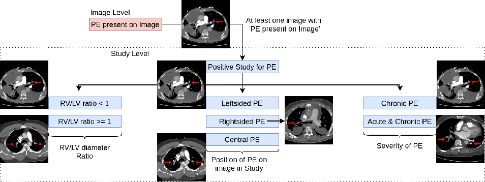 Figure 3 for Attention based CNN-LSTM Network for Pulmonary Embolism Prediction on Chest Computed Tomography Pulmonary Angiograms