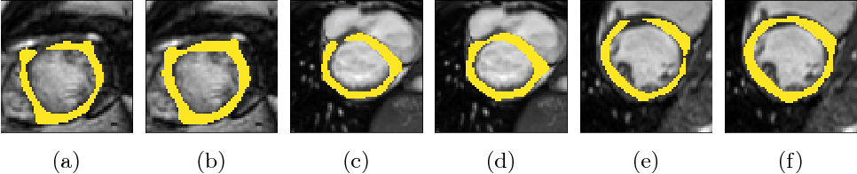Figure 1 for Explicit topological priors for deep-learning based image segmentation using persistent homology