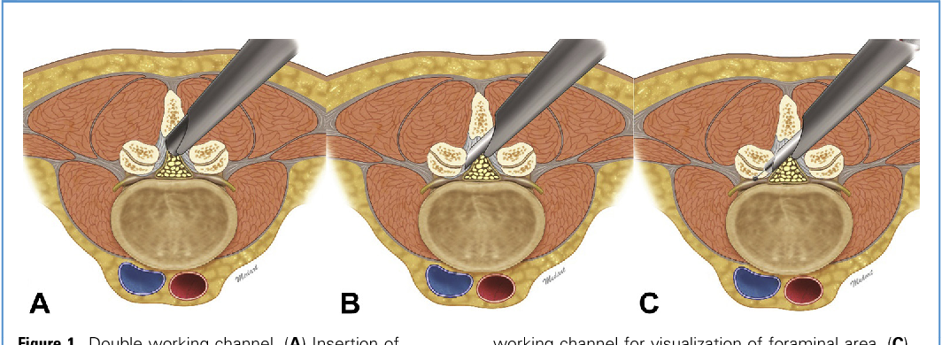 Early Outcomes Of Endoscopic Contralateral Foraminal And Lateral