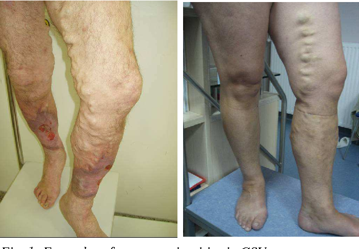 The Treatment Of Saphenous Vein Occlusion By Endovenous Laser